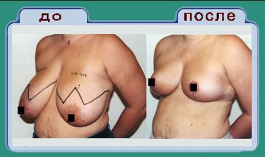 лифтинг груди, подтяжка, уменьшение молочных желез, Симферополь, Днепропетровск, Украина, клиника пластической хирургии, операции на груди